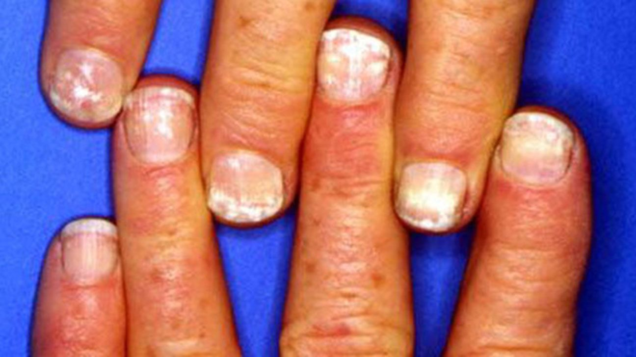 White Spots On The Nails Causes And More White Spots On Nails White Marks On Nails White Spots On Fingernails