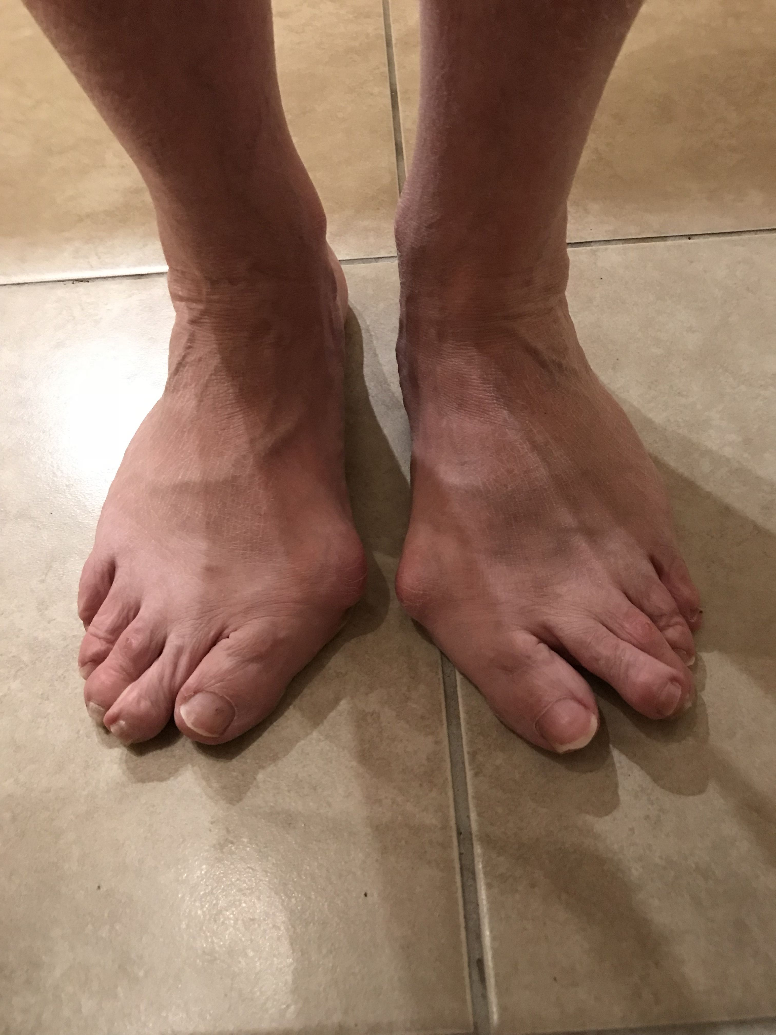 efe4383e41645 Our customer Karen had issues with finding shoes to accommodate and conceal  her bunions. Until she found Sole Bliss!