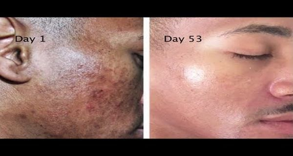 Get Rid Of Stains Spots And Hyperpigmentation With This Natural Recipe Of 2 Ingredients Exposed Skin Care Hyperpigmentation Skin