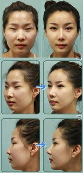 Korean woman before and after a plastic surgery. It is very sad for me.  #after …