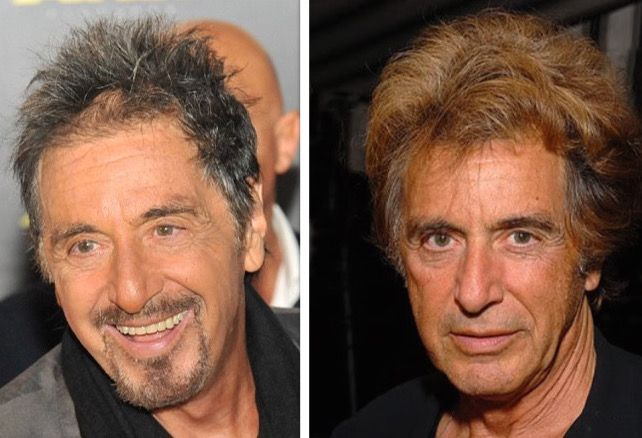 Al Pacino Before And After Hairpiece And Plastic Surgery