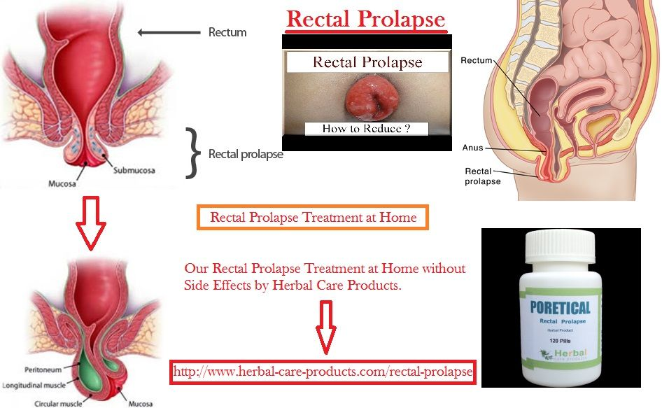 Things that cause anal prolapse