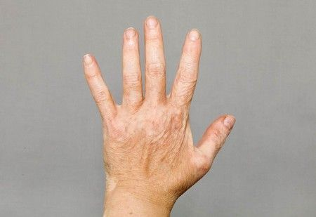 Vitiligo Causes, and Vitiligo Treatment Options: A better and safer option for vitiligo treatment…