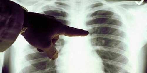 Cáncer de pulmón sigue su desalentador avance en América