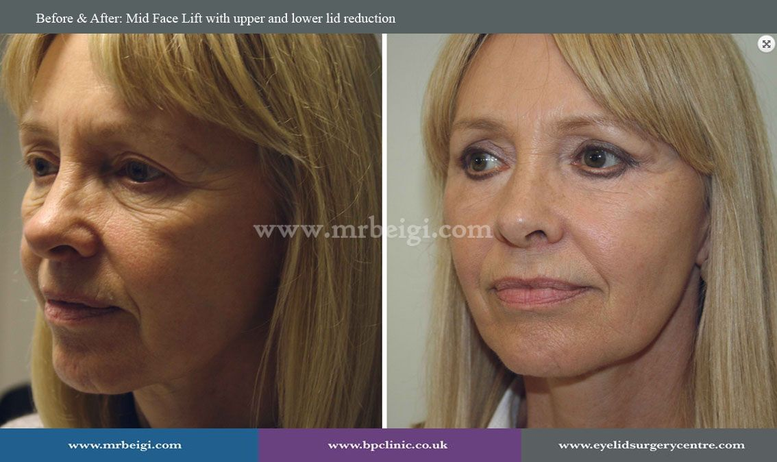 Before & After: Mid Face Lift with upper and lower lid reduction #beforeandafter #cosmeticsurgery #laser #surgical #cosmeticsurgery #MrBeigi www.mrbeigi.com