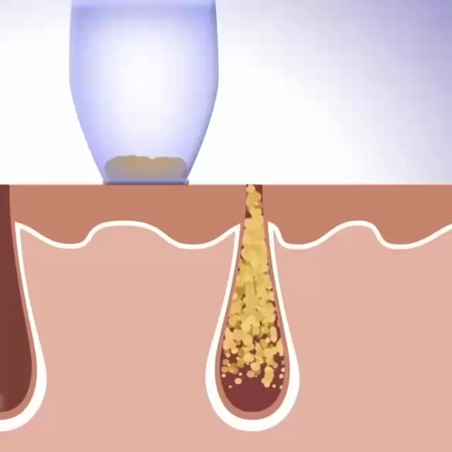 Pro Facial vaccum suction & blackhead remover -   15 skin care For Teens videos ideas