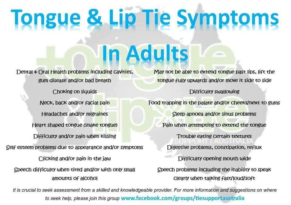 Adult Tongue & Lip Tie Symptoms | ARTICLES TO KEEP | Sleep dentistry