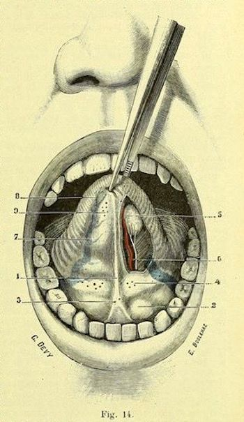 Fig. 14. Underside of the tongue. Traité d\'anatomie humaine. 1899 ...