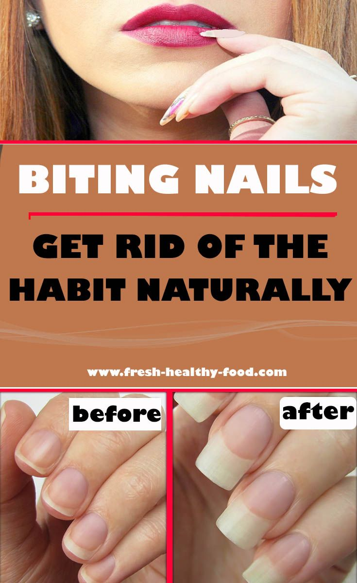 Nail biting is a habit that is literally affecting huge number of ...