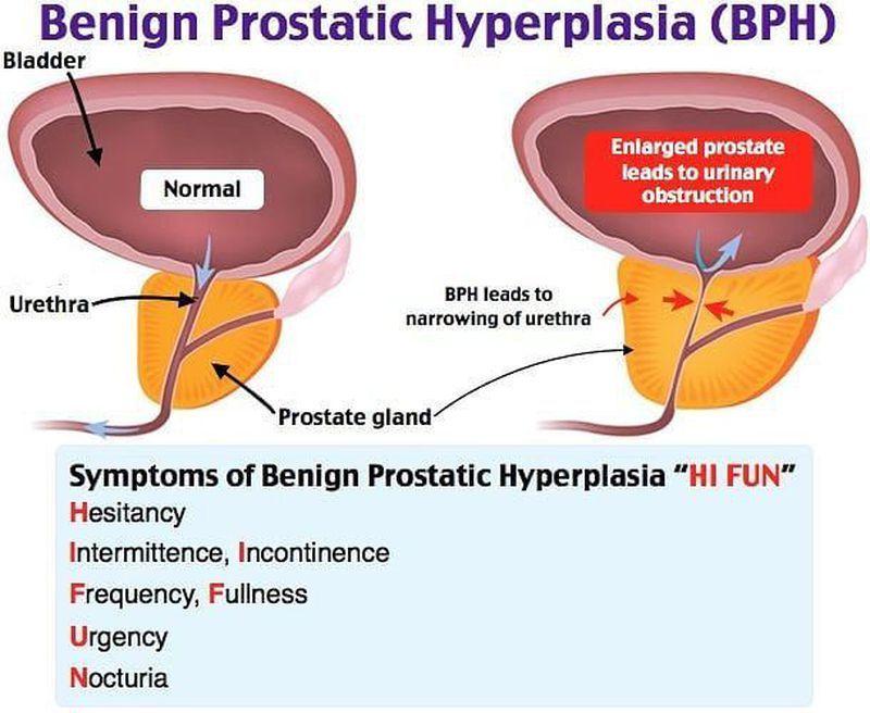 benign prostatic hyperplasia)