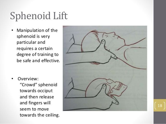 sphenoid lift 18 • manipulation of the sphenoid is very particular, Human Body