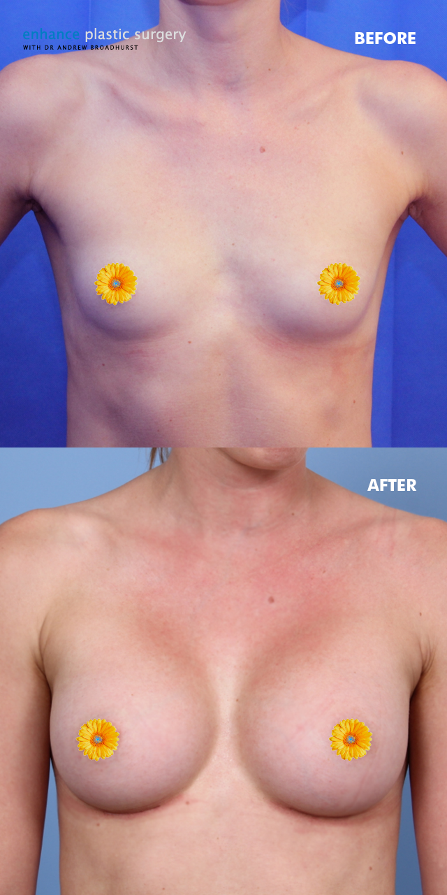 pictures anatomical breast implants