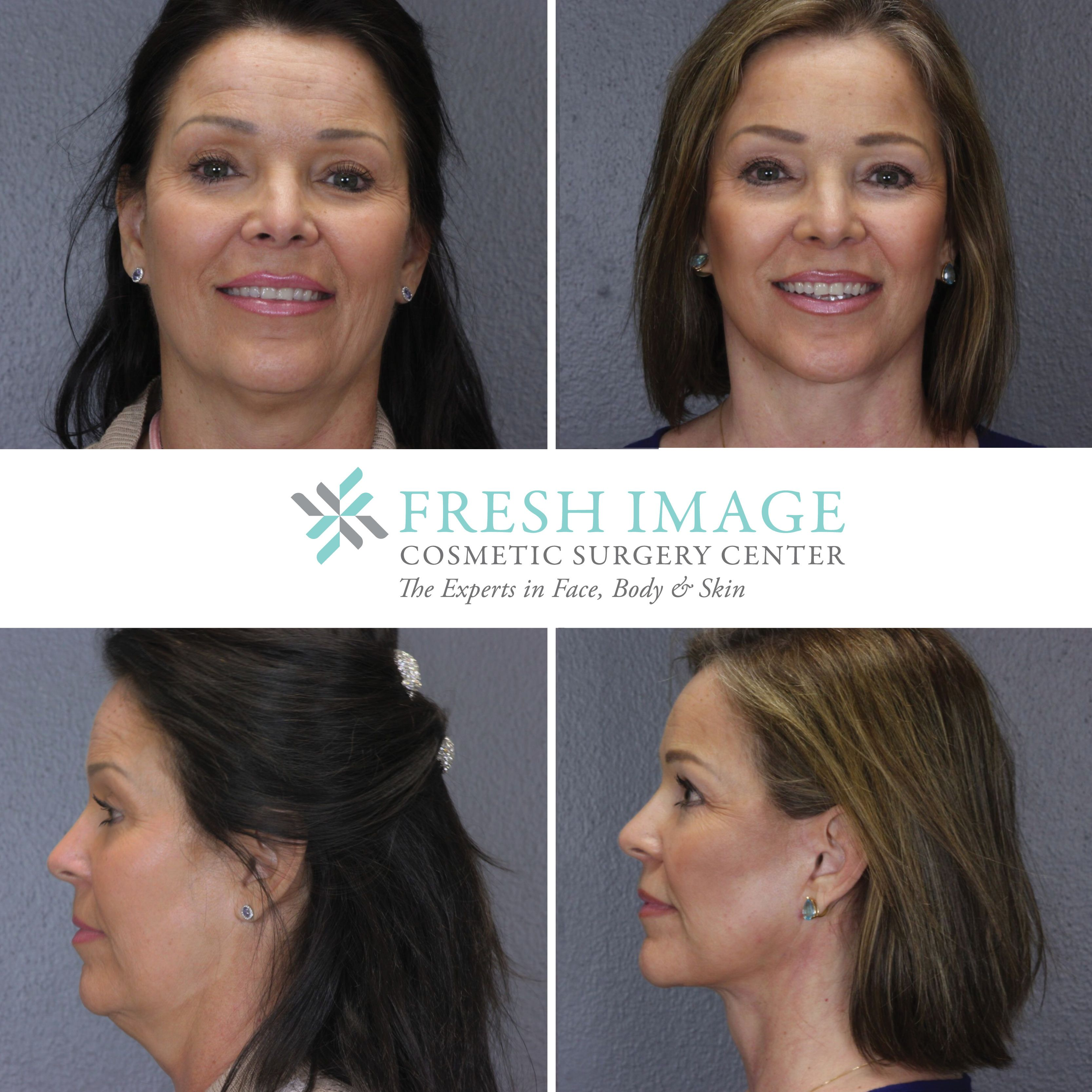 Re piercing nose scar tissue  Fresh Image Cosmetic Surgery Center freshimagetexas on Pinterest