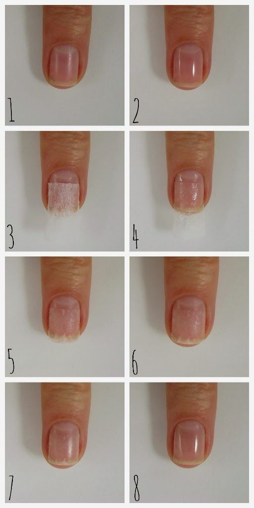 how to fix a split nail with a tea bag