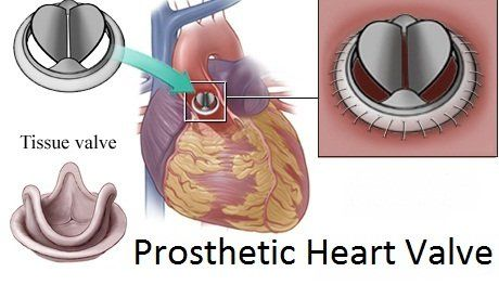 Prosthetic Heart Valve Market Size Trends Shares Insights Forecast Coherent Market Insights Aortic Valve Replacement Heart Valves Artificial Heart Valve