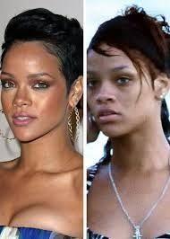 Rihanna Before Fame : rihanna, before, Rihanna, Before, After, Albums
