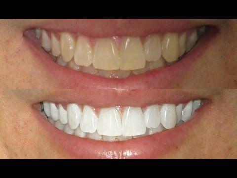 Como Clarear Os Dentes Em Casa Em 2 Minutos Youtube Com Imagens