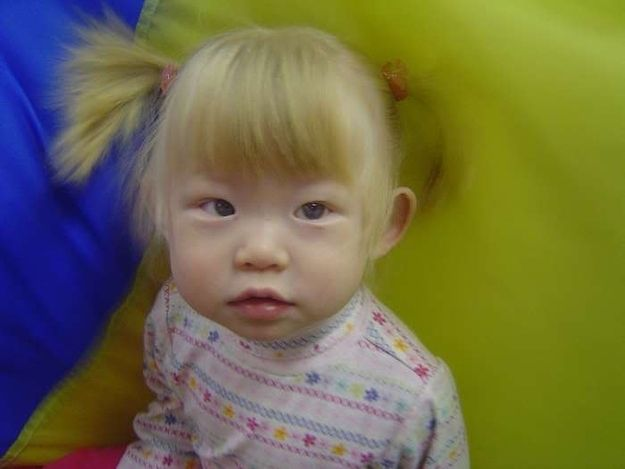 25 Photos Of Asian People With Blue Eyes Albino Girl People