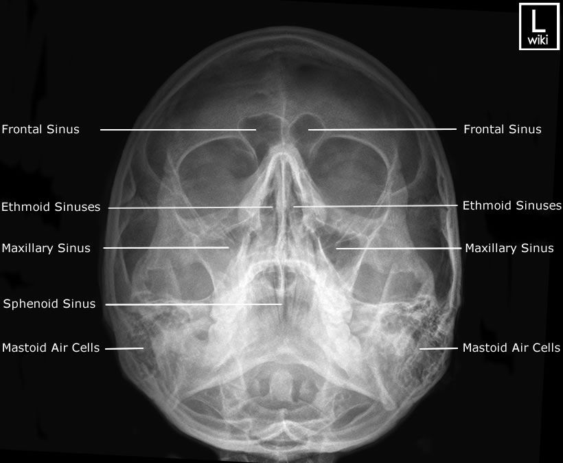 Sinuses - Occipito Mental (OM) (Waters) | Radiographic Anatomy ...