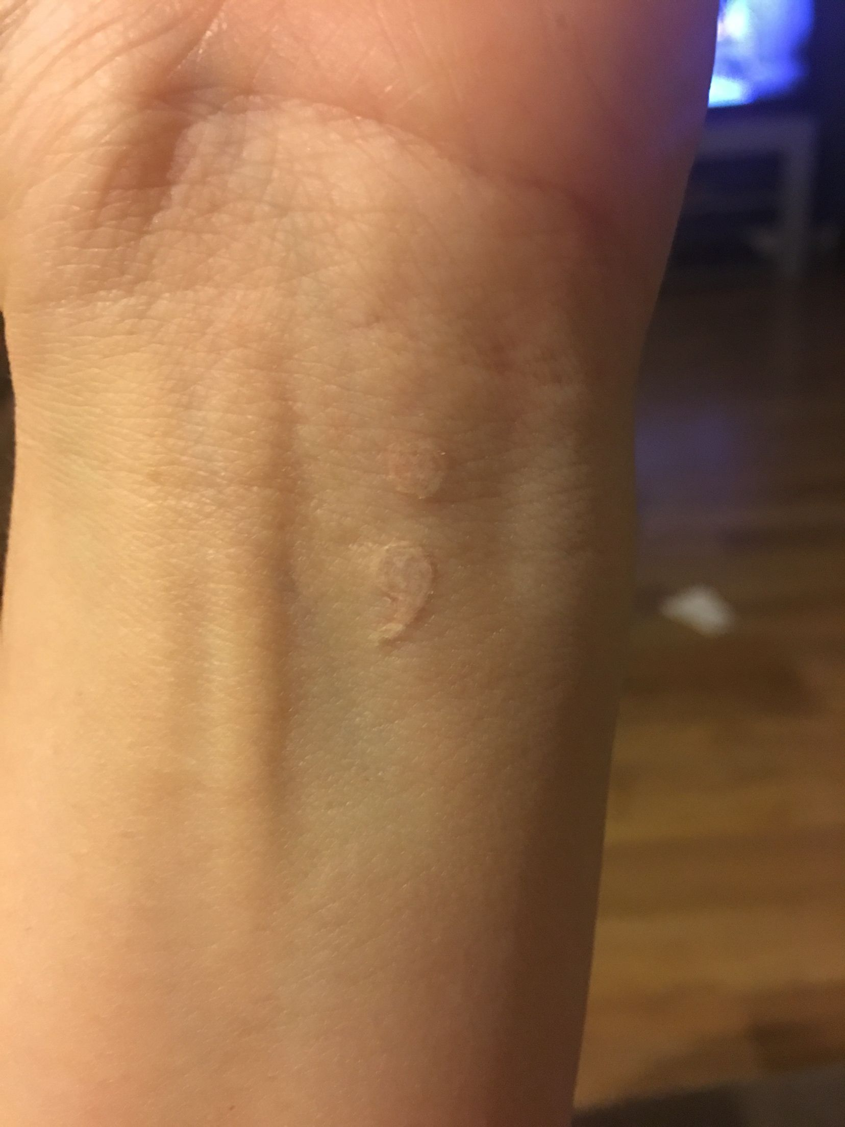 122811159b8de White semi-colon tattoo More Semicolon Tattoo Placement ...