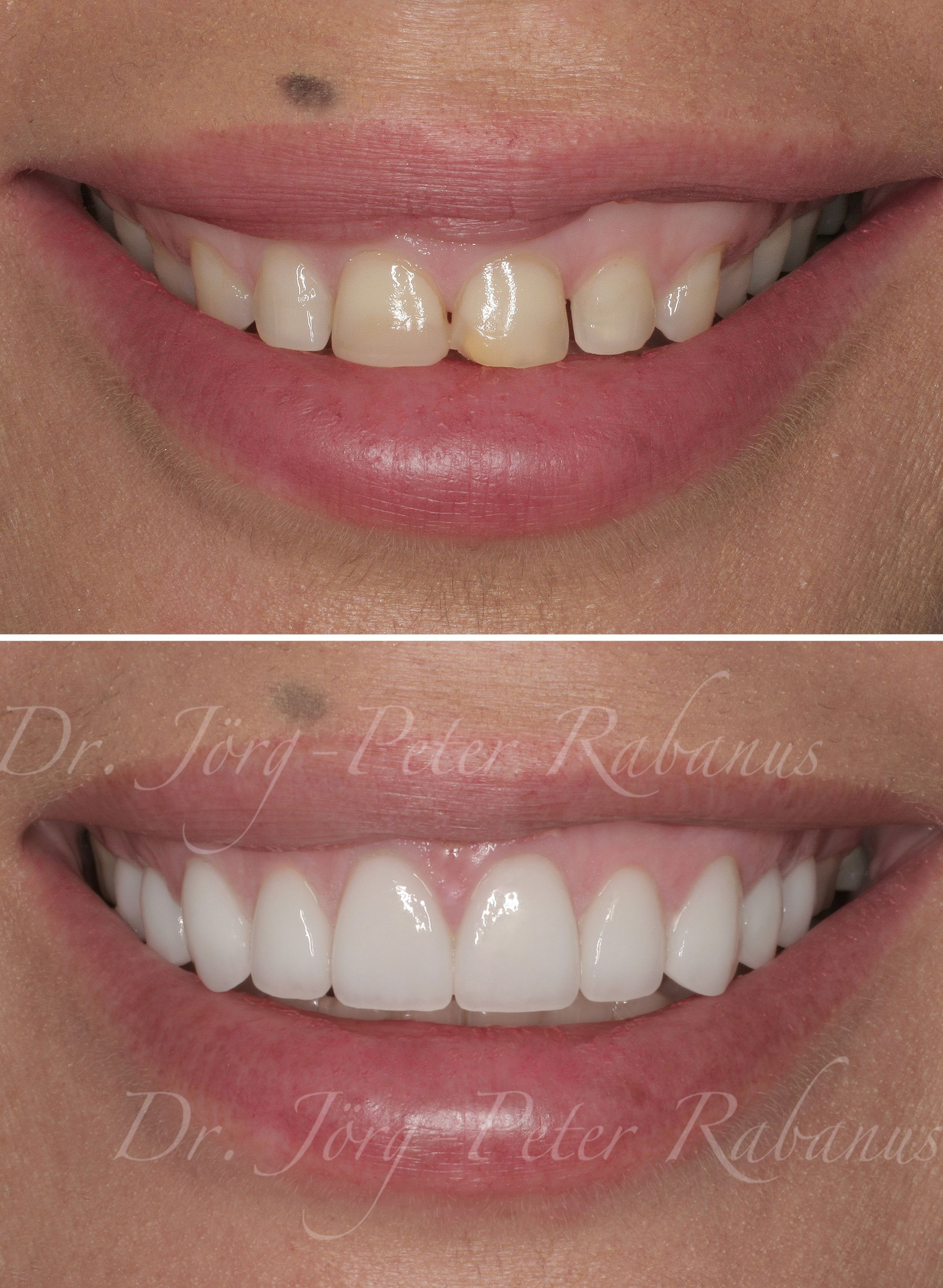 Small Teeth And A Gummy Smile With An Asymmetric Lip Line This Patient Came To Me With Various Conc Veneers Teeth How To Line Lips Cosmetic Dentistry Veneers
