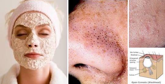 Maschere esfolianti contro punti neri e brufoli | Rimedio Naturale