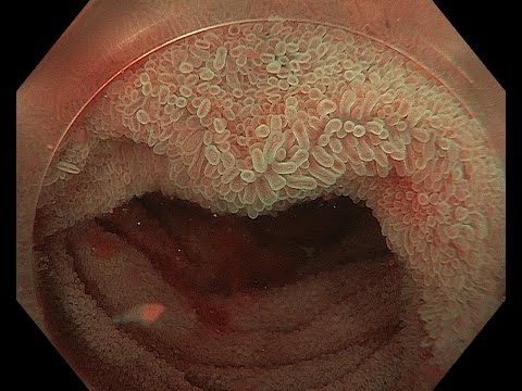 Villous mucosa of the terminal ileum by hydroilecolonposcopy with ...