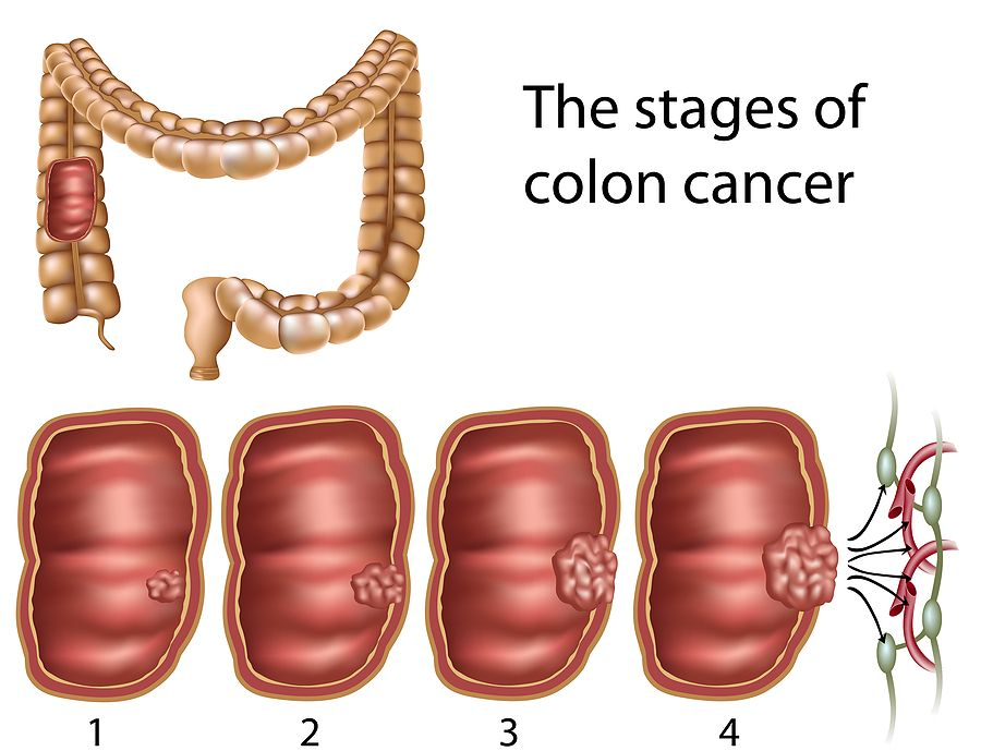 Searching for answers? Click here to learn more about colon cancer ...
