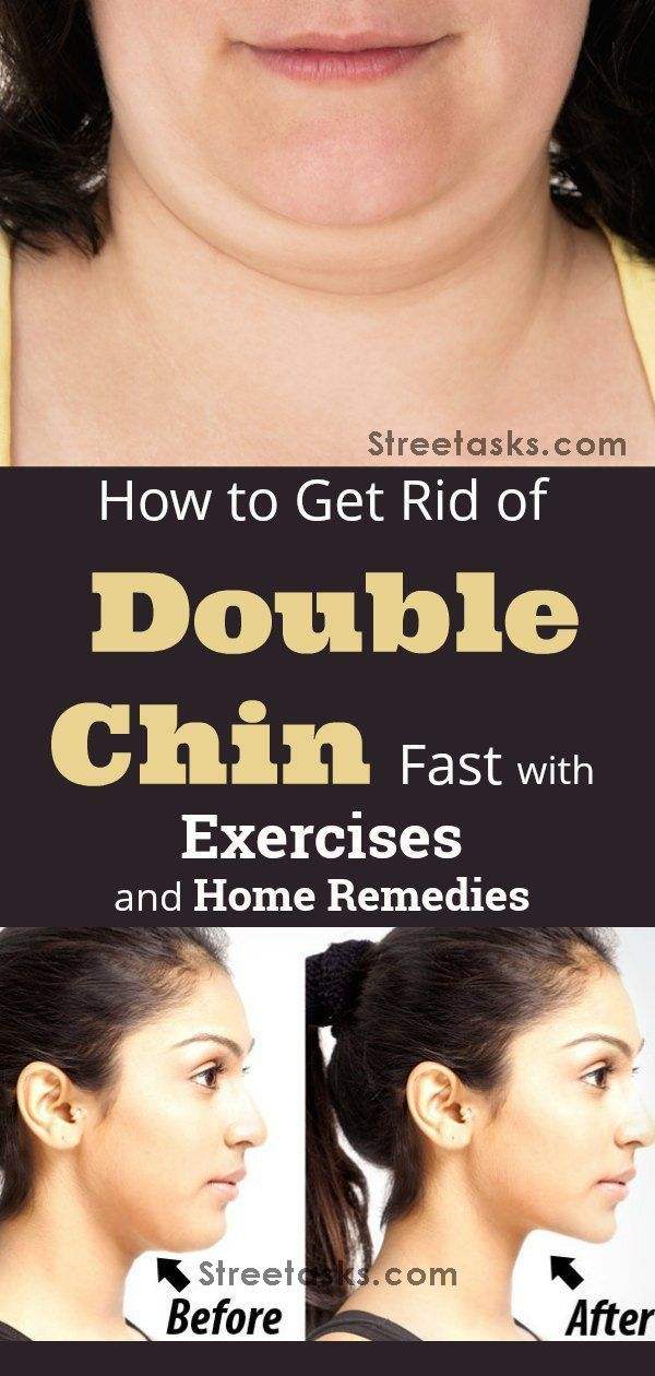 how to loose weight under your chin