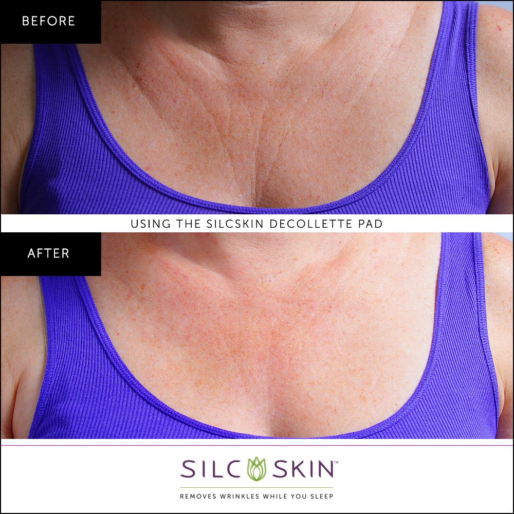 Our Decollette Pad Takes Those Unsightly Chest Wrinkles Away Fast
