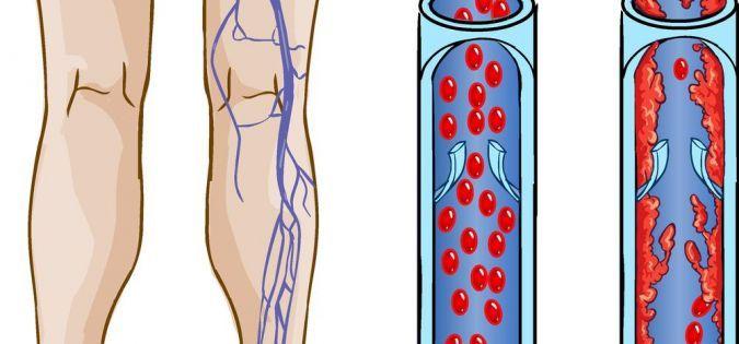 Причины тромбоза глубоких вен. Чем опасен тромбоз глубоких вен ...
