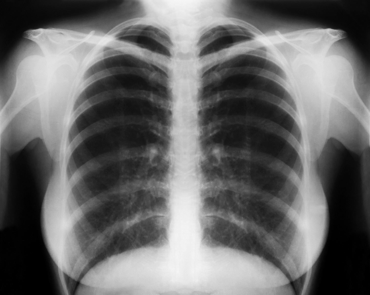 COPD Chest XRay COPD Lung X Ray XRay Pinterest Lungs