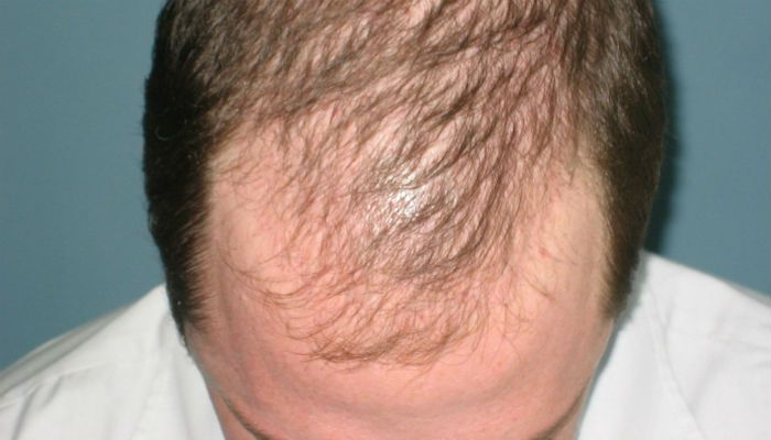 Thin in supply - sparse | Eyebrow hair loss, Lost hair ...