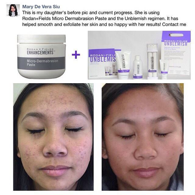 Take control of your acne and love your skin!