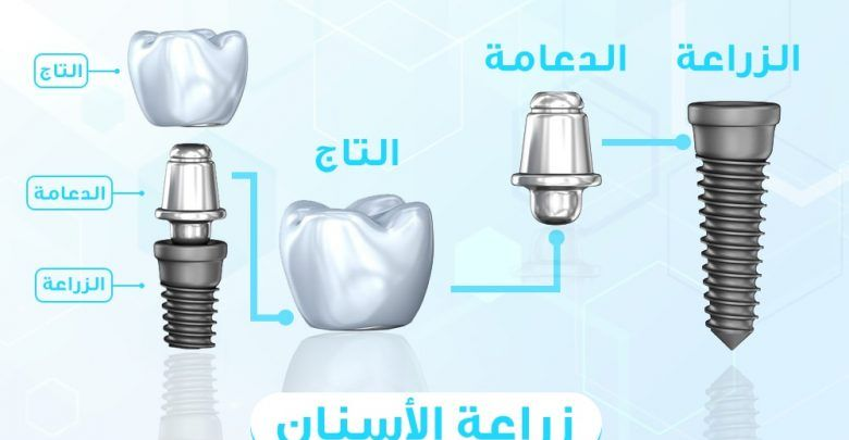 كيف تتم زراعة الاسنان معلومات طبية مهمة جدا عن زراعة الاسنان