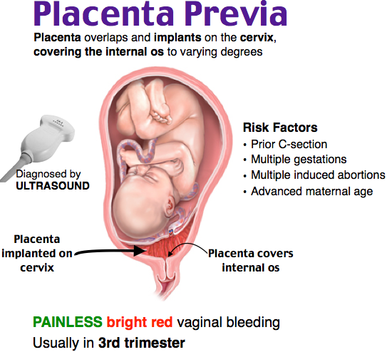 Dangers of a mature placenta — photo 3