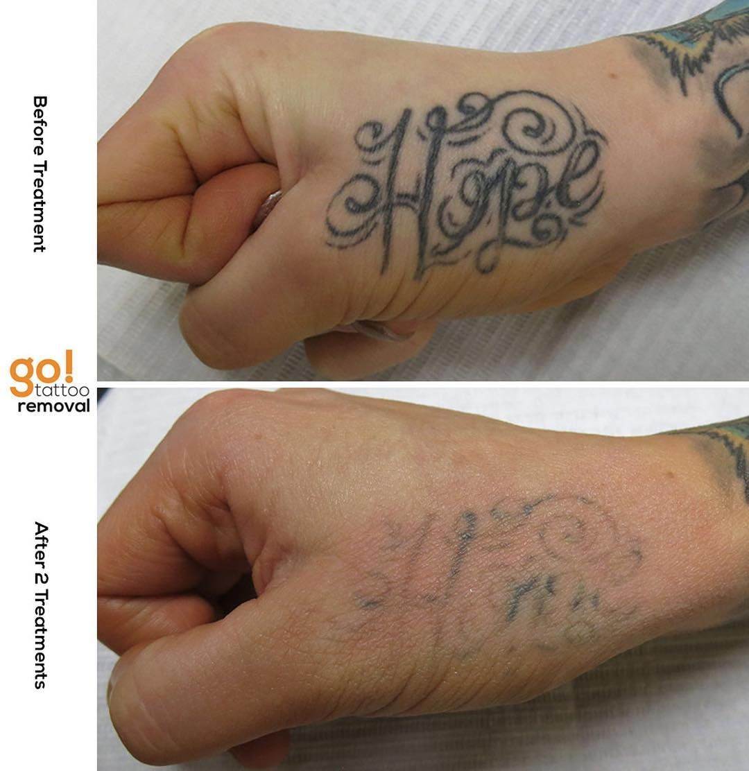 Hand tattoos typically fade slowly this client is