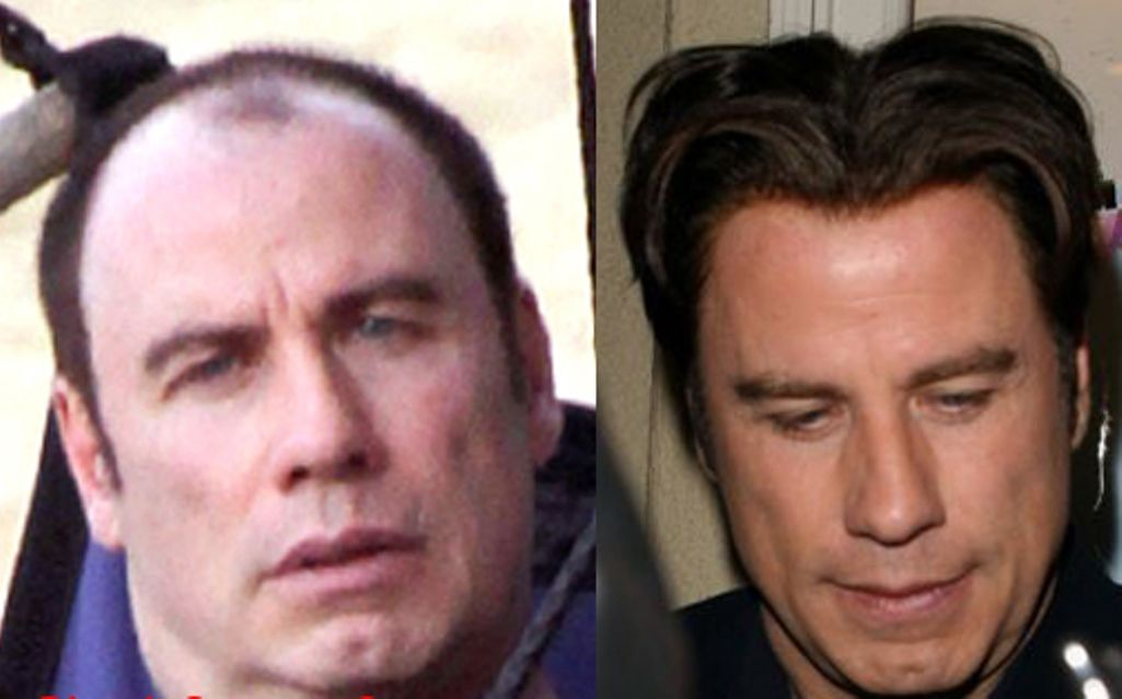 John Travolta bald and wearing one of his