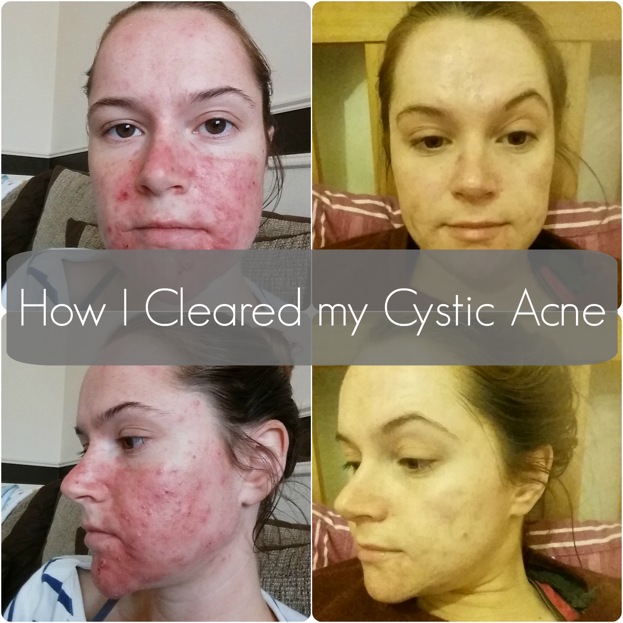 How I Cleared my Cystic Acne [Before