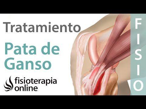 Tendinitis De La Pata De Ganso Ejercicios Consejos Y Recomendaciones De Un Fisioterapeuta Y Rehabilitation Exercises Radiology Imaging Occupational Health