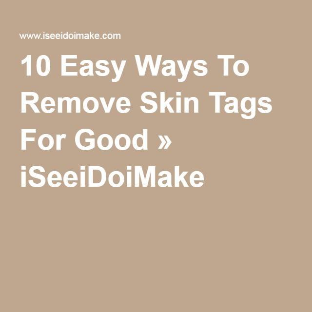 10 Easy Ways To Remove Skin Tags For Good » ISeeiDoiMake