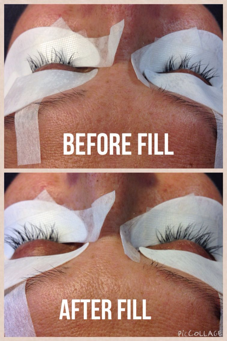 Before Fill And After Fill Eyelash Extensions Plumeria Beauty