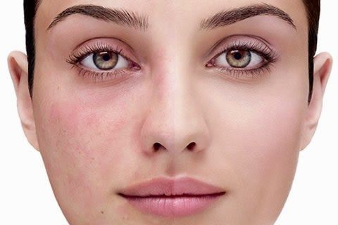 How To Get Rid Of Rosacea Naturally Natural Rosacea Treatment Rosacea Treatment Rosacea Acne Treatment
