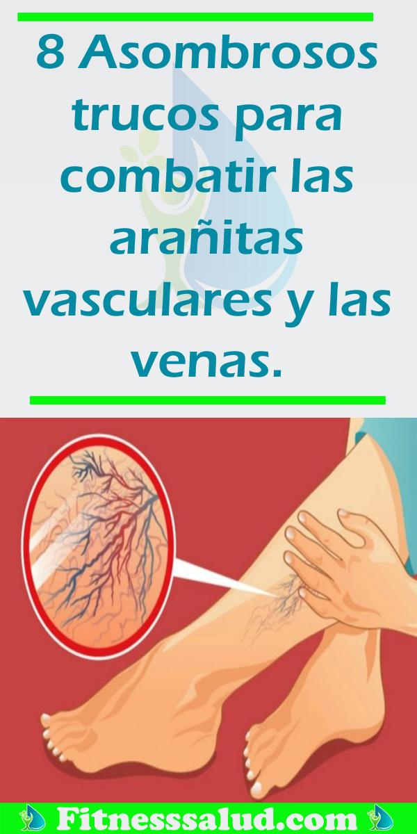 8 Asombrosos Trucos Para Combatir Las Arañitas Vasculares Y Las Venas Natural Health Remedies Home Remedies Health Remedies