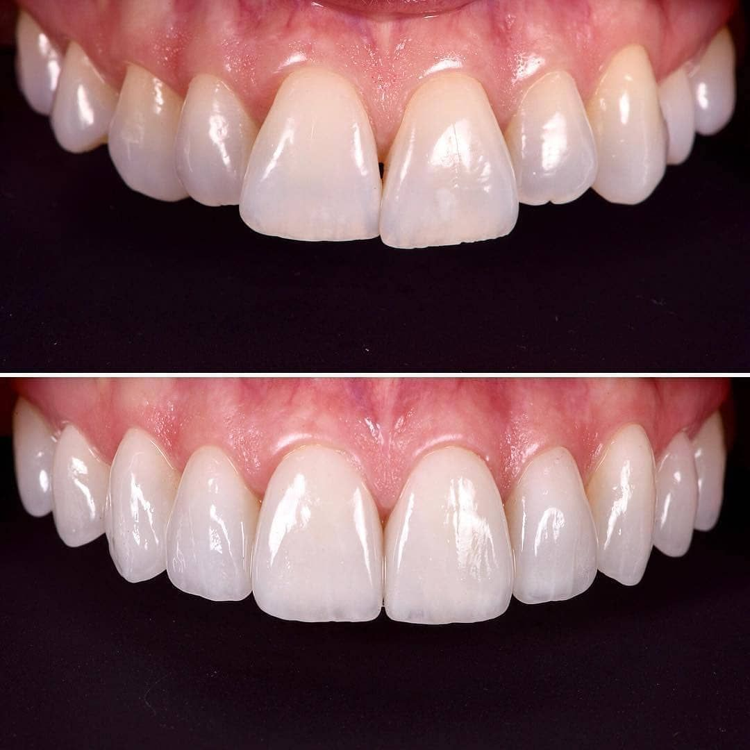 Pin by bogdan zolotar on stomat dental implants cost