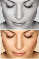 Latisse- Its a miracle. LATISSE® solution is a prescription treatment for hypotrichosis used to grow eyelashes, making them longer, thicker and darker.