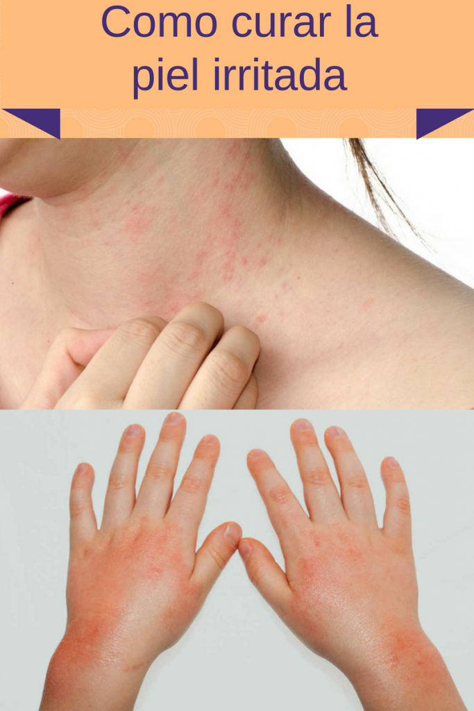 Como curar la #pielirritada con #remediosnaturalesycaseros