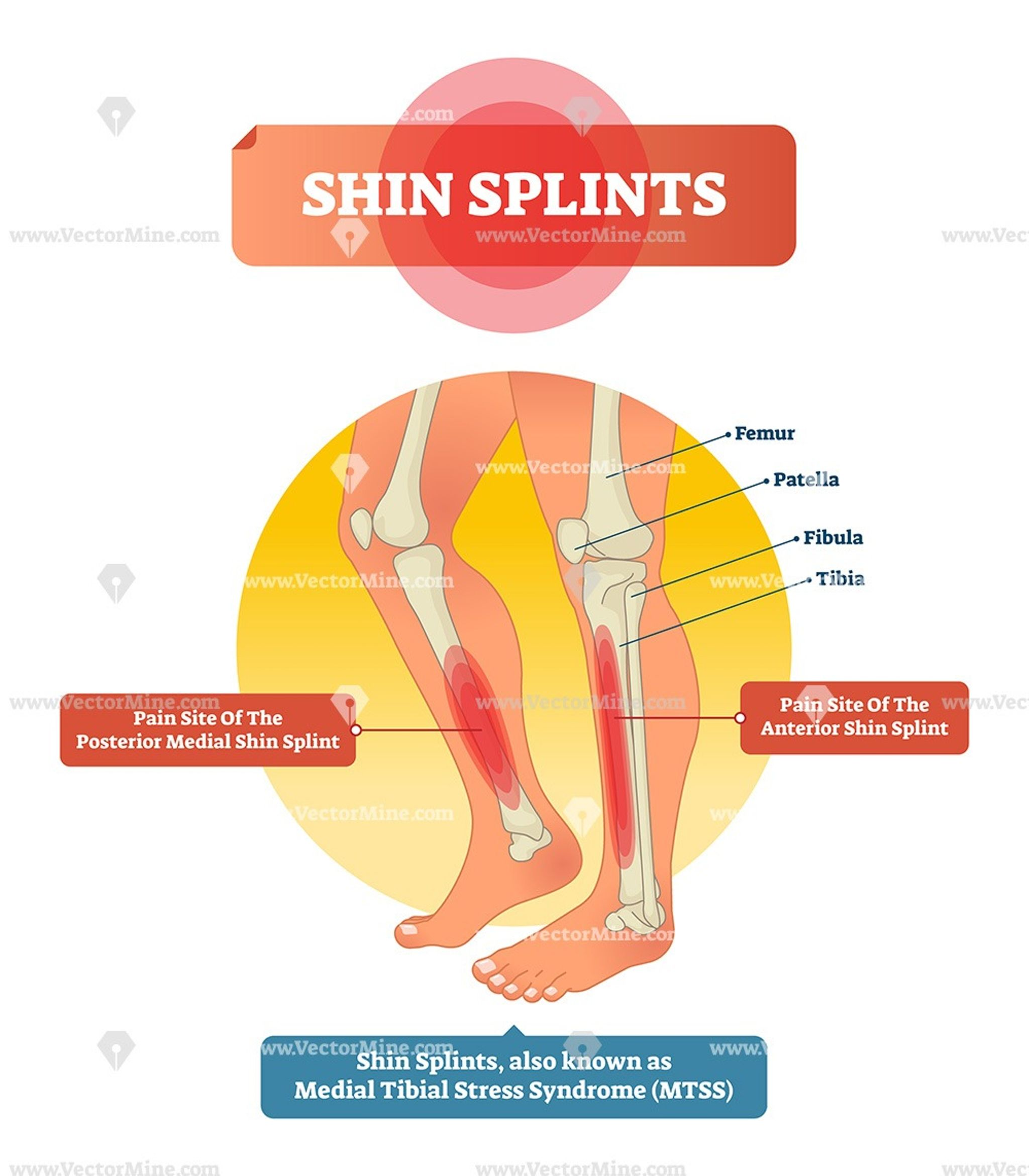 Shin Splints Anatomical Vector Illustration Diagram