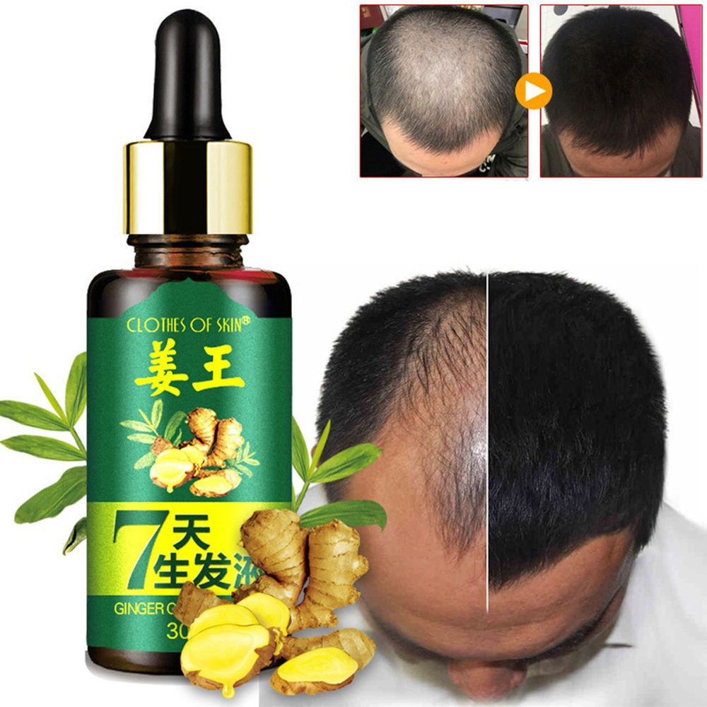 7 DAYS HAIR GROWTH CARE GINGER ESSENTIAL OIL NOURISHING DRY