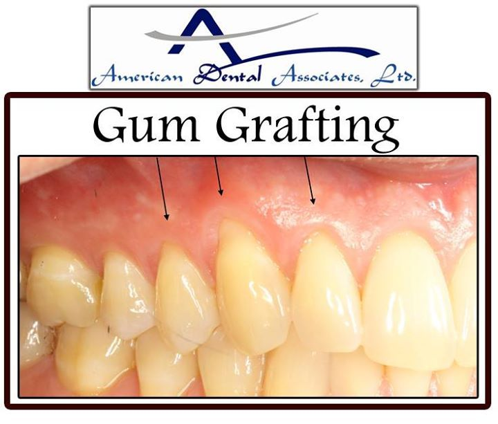 Grafts gum tissue graft surgery